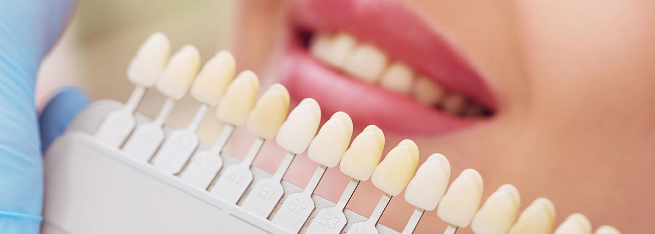 Dental implants - Color samples.